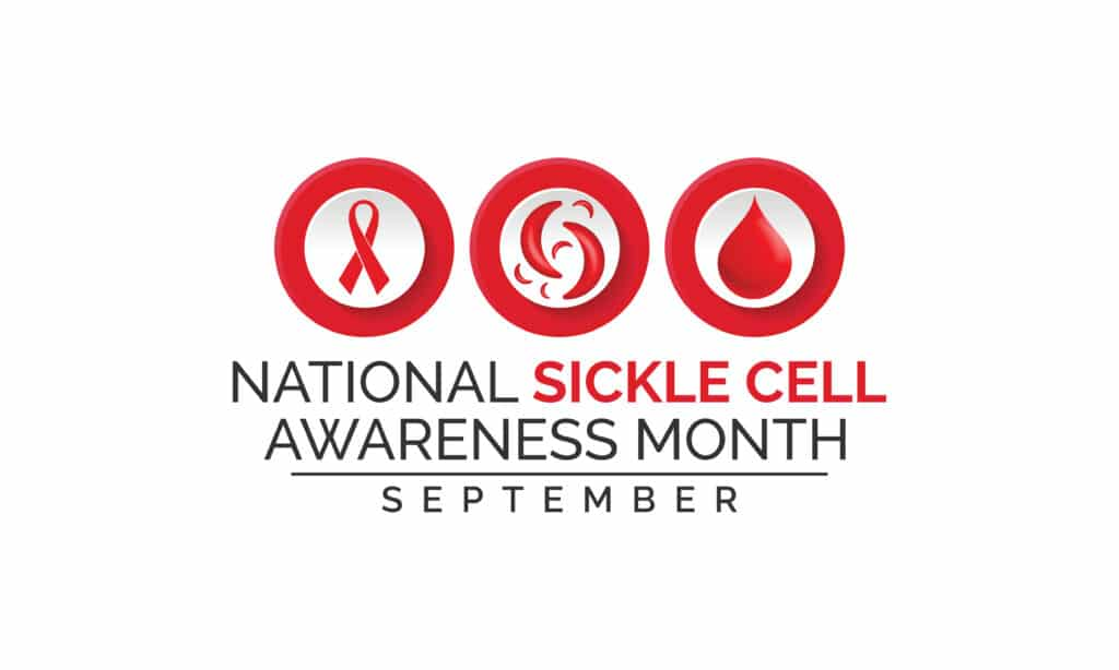 Vector,Illustration,On,The,Theme,Of,National,Sickle,Cell,Awareness