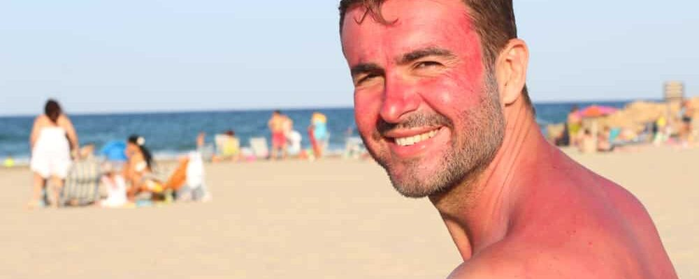 Man,Getting,Sunburned,At,The,Beach
