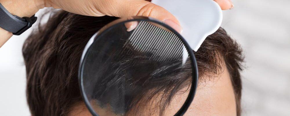 Head lice