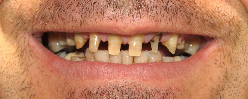 Bad,Teeth
